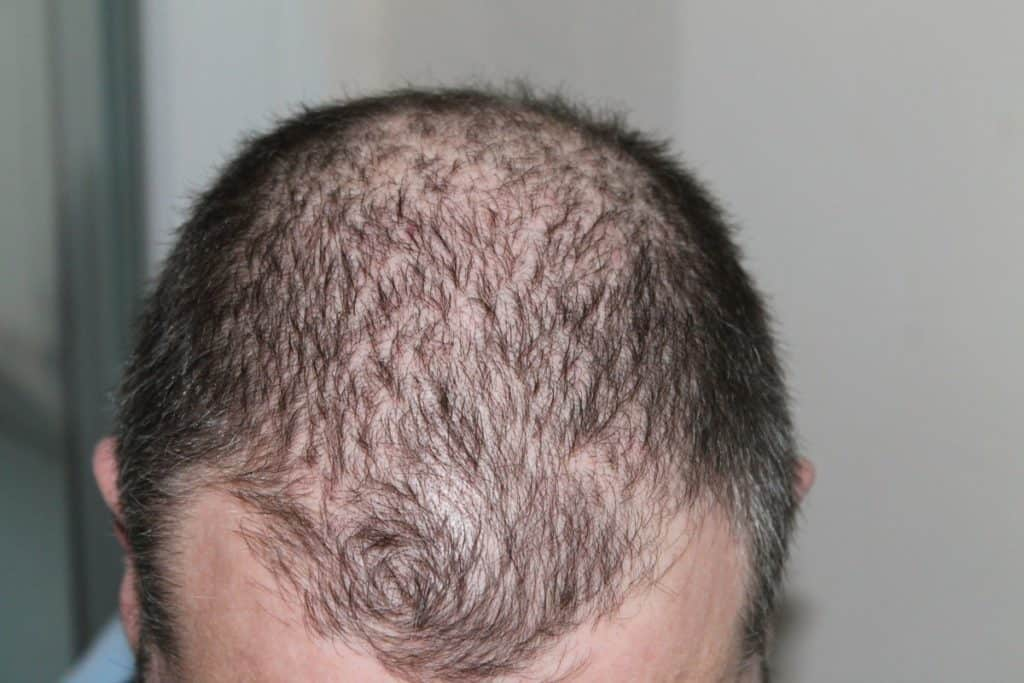 how to stop hormonal hair loss in male