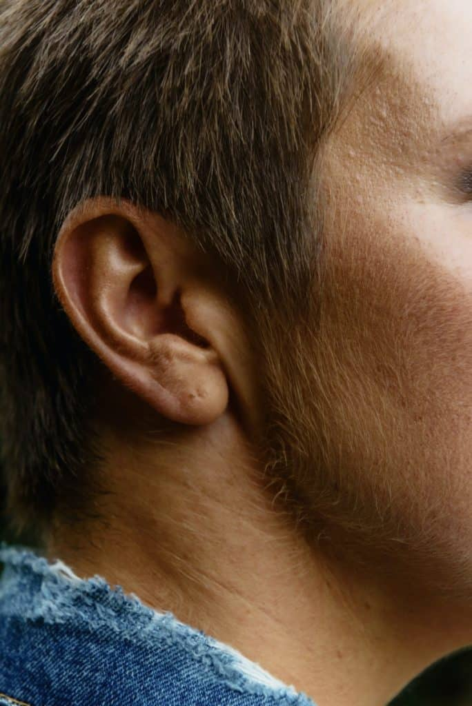 how to remove hair from ears permanently naturally